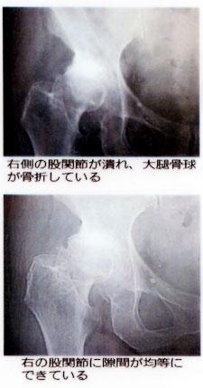 73歳 女性 主訴:変形性股関節症